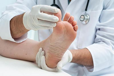 Gout Risk Factors and Treatment Options