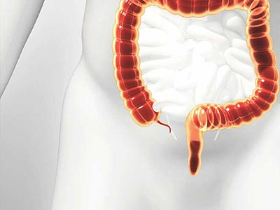 Acute Appendicitis (Appendix): Diagnosis, Complications and Treatment