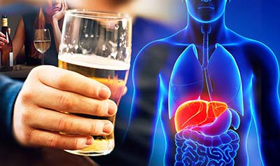 How Dangerous Is Cirrhosis of the Liver?
