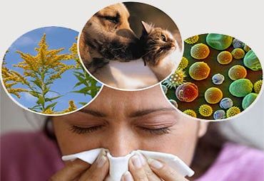 Immunology & Allergy
