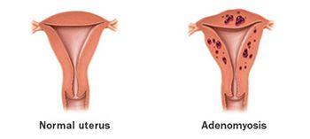 Adenomyosis Treatment - Best Gynecologists in Brooklyn NYC