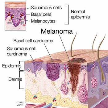 Basal Cell Carcinoma Treatment in Brooklyn