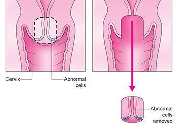 Cervical Cone Biopsy Procedure in Brooklyn NYC