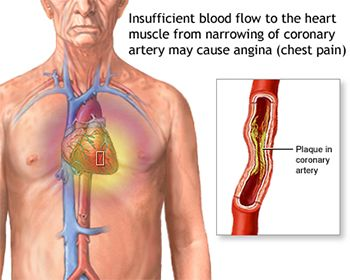 Chest Pain Treatment - Best Internal Medicine Doctors in Brooklyn NYC