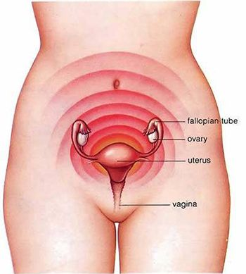 Dysmenorrhea Treatment - Best Gynecologist in Brooklyn NYC