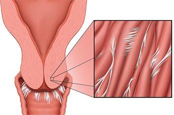 Dyspareunia Treatment - Best Gynecologists in Brooklyn