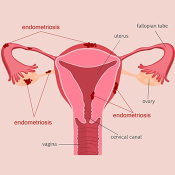 Endometriosis Treatment - Top Gynecologists in Brooklyn NYC