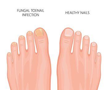 Nail Fungus Treatment - Best Brooklyn Dermatologists