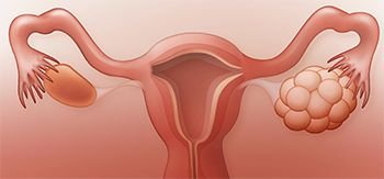 Ovarian Polyps Treatment - Best Gynecologists in Brooklyn NYC