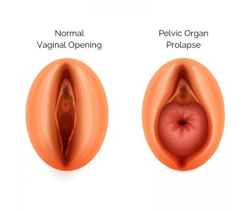 Pelvic Prolapse Treatment - Best Gynecologists in Brooklyn NYC