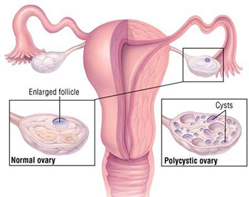 Polycystic Ovarian Syndrome Treatment - Century Medical and Dental Center