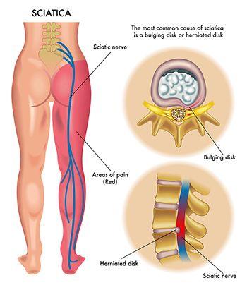 Sciatica Pain Treatment - Best Pain Management Doctors in Brooklyn