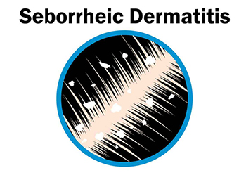Seborrheic Dermatitis Treatment - Century Medical & Dental Center