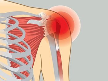 Shoulder Pain Treatment - Century Medical and Dental Center in Brooklyn NYC