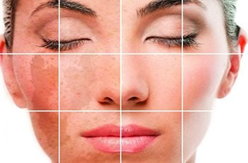 Skin Discoloration Treatment - Best Dermatologists in Brooklyn NYC