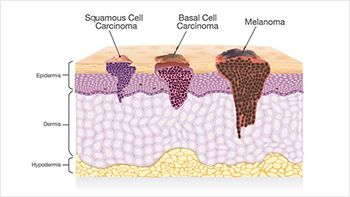 Squamous Cell Carcinoma Treatment - Best Dermatologists in Brooklyn NY