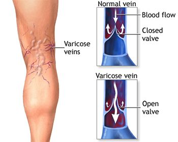 Varicose Veins Treatment - Best Vein Doctors in Brooklyn NYC