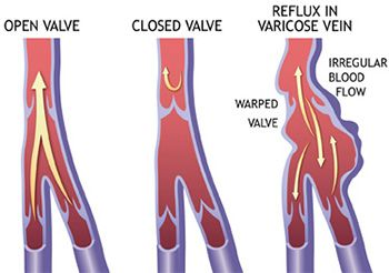 Venous Insufficiency Treatment - Best Vein Doctors in Brooklyn NYC