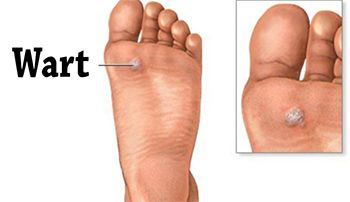 Warts Treatment | Best Dermatologist in Brooklyn NYC