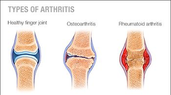 Arthritis and Osteoarthritis Treatment in Brooklyn NYC