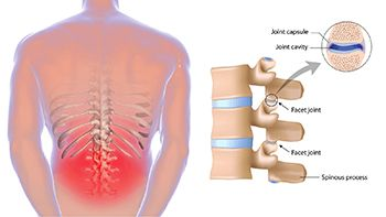Back Pain Treatment - Century Medical and Dental Center