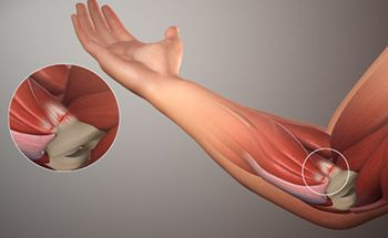 Elbow Pain Treatment - Best Physical Therapists in Brooklyn NYC
