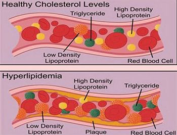 High Cholesterol and Triglycerides Treatment in Brooklyn NYC