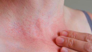 Red Spots on Skin Treatment - Century Medical & Dental Center Dermatologist
