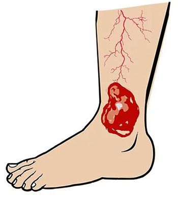 Venous Stasis Ulcer Treatment in Brooklyn NYC